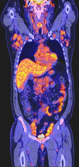 PET Scan Example from Concierge Radiologist